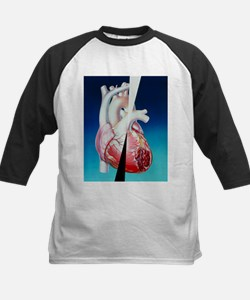 to atherosclerosis - Tee