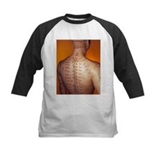 Acupuncture model - Tee