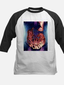 Large intestine, X-ray - Tee