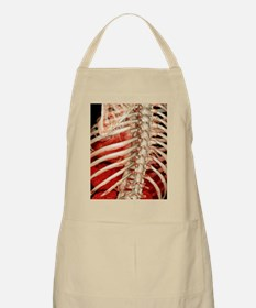 Aortic aneurysm CT scan - Apron