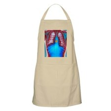 Swallowed coin, X-ray - Apron