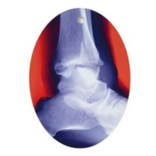 Fractured ankle, X-ray - Oval Ornament