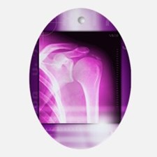 Calcified shoulder joint, X-ray - Oval Ornament