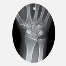Fractured wrist, X-ray - Oval Ornament
