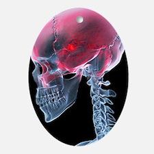 Headache, X-ray artwork - Oval Ornament