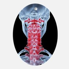 Neck pain, X-ray artwork - Oval Ornament
