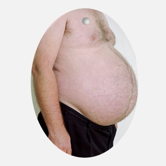 Overweight man - Oval Ornament