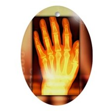 Hand, X-ray - Oval Ornament