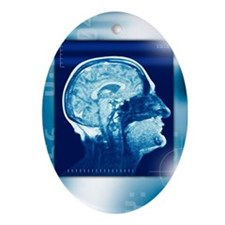 Healthy brain, MRI scan - Oval Ornament