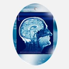 Healthy brain, MRI scan - Oval Ornament