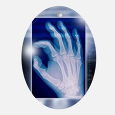 Healthy hand, X-ray - Oval Ornament