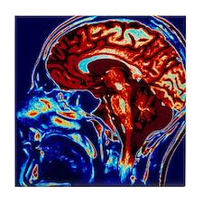 Cute Healthy brain Tile Coaster