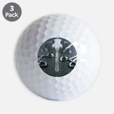 Manual vacuum abortion equipment - Golf Ball