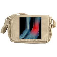 Ankle pain, conceptual artwork - Messenger Bag