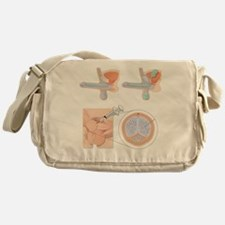 Impotence treatments, artwork - Messenger Bag