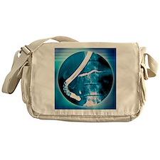 Pancreas examination, X-ray - Messenger Bag
