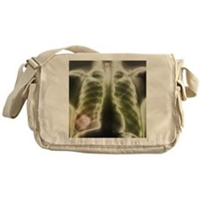 Pulmonary tapeworm cysts, X-ray - Messenger Bag