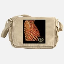Ribcage and heart, 3D CT scan - Messenger Bag