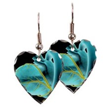 The coronary vessels of the he Earring Heart Charm