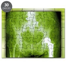 Total hip replacement Puzzle