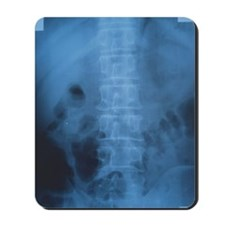 X-ray of a human backbone Mousepad