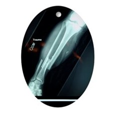 X-ray of broken bone Ornament (Oval)