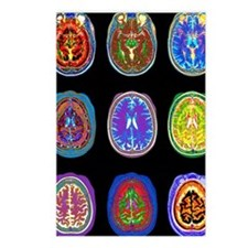 Nine MRI scans of woman's Postcards (Package of 8)