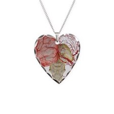 The arteries of the brain Necklace