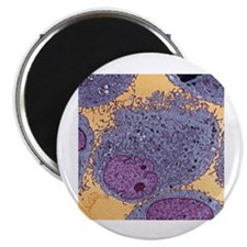 "Leukemia cells 2.25"" Magnet (10 pack)"