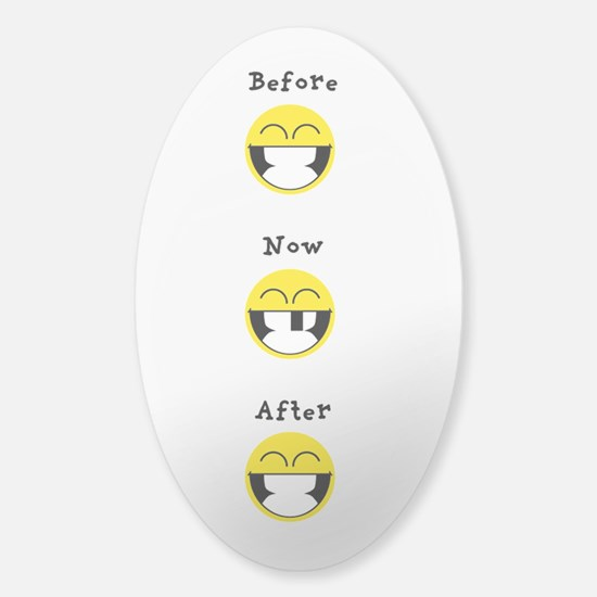 Smiley - before after Decal