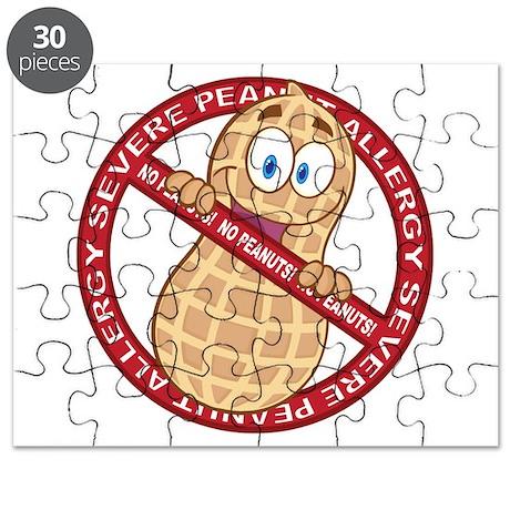 Severe Peanut Allergy Puzzle