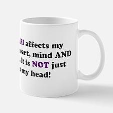 Chiari Affects... Mug