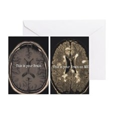 Brain on MS Greeting Card