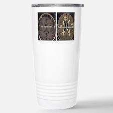 Brain on MS Thermos Mug