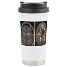 Brain on MS Travel Mug