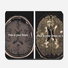 Brain on MS Mousepad