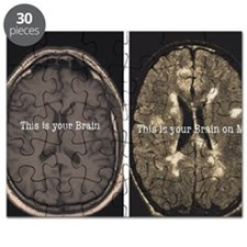Brain on MS Puzzle