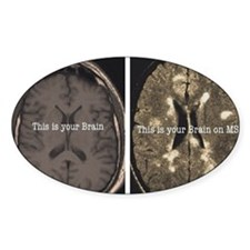 Brain on MS Decal