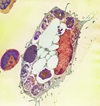 Infected Cell