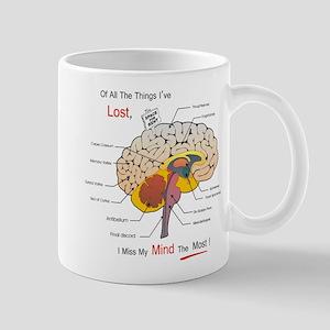 I miss my mind Mugs