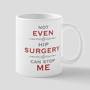 Hip Surgery Humor Mugs