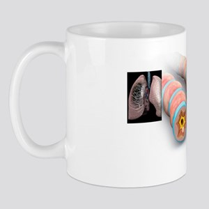 Asthma pathology, artwork Mug
