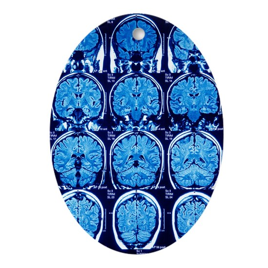 Jew Detector: Brain Scans, MRI Scans Oval Ornament By Science-Photo