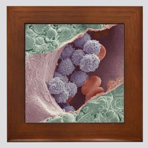 Bone marrow, SEM Framed Tile