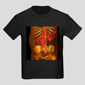 Aortic aneurysm, 3-D CT scan - Kid's Dark T-Shirt