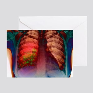 Pneumonia, X-ray Greeting Card