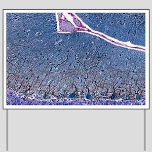 Purkinje cells, light micrograph Yard Sign