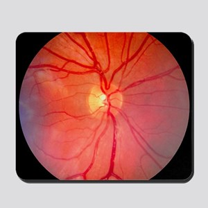 Normal retina of eye Mousepad