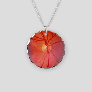 Normal retina of eye - Necklace Circle Charm