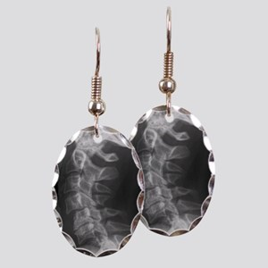 Dislocated neck bones, X-ray Earring Oval Charm